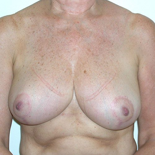 Breast Reduction 53 After Photo