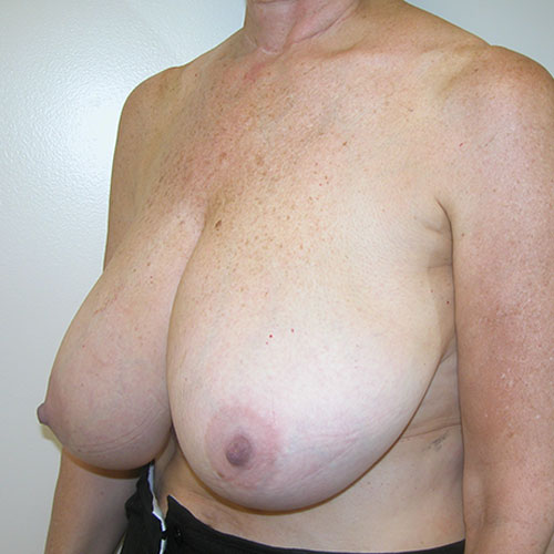 Breast Reduction 53 Before Photo