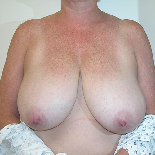 Breast Reduction 54 Before Photo