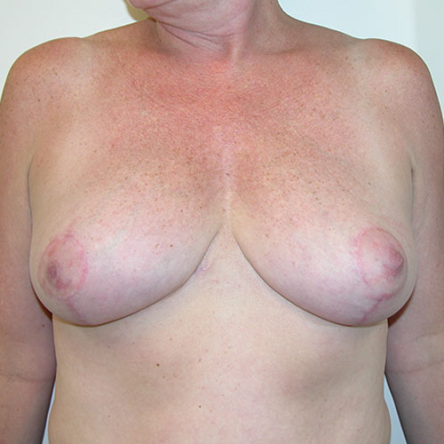 Breast Reduction 54 After Photo