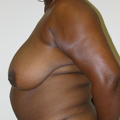Breast Reduction 55 Before Photo