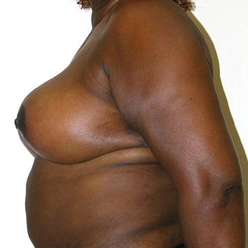 Breast Reduction 55 After Photo