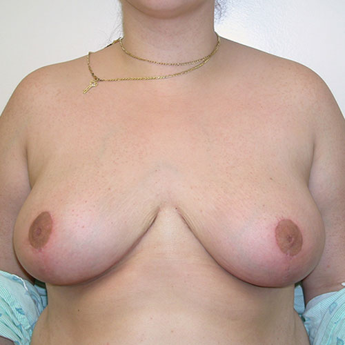 Breast Reduction 56 After Photo