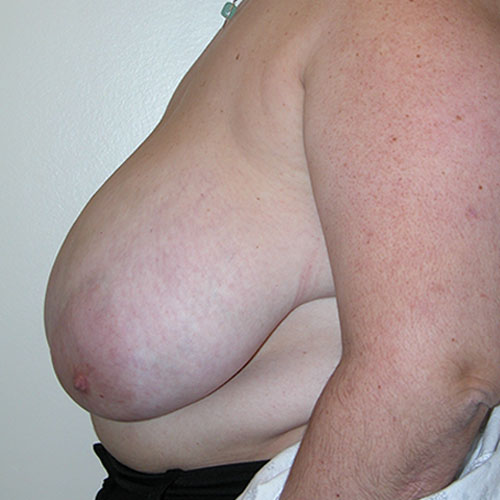 Breast Reduction 56 Before Photo