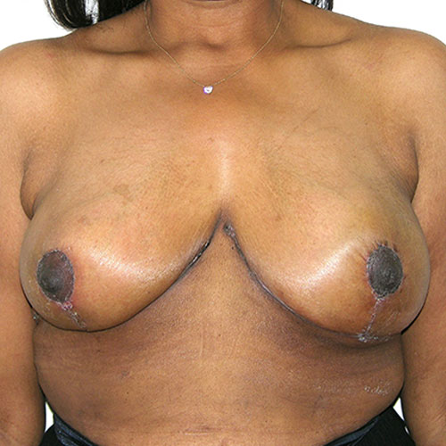 Breast Reduction 57 After Photo