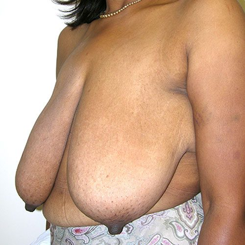 Breast Reduction 57 Before Photo