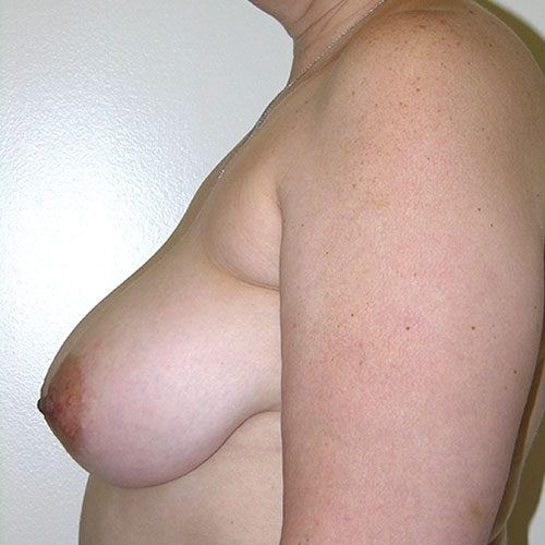 Breast Reduction 58 Before Photo