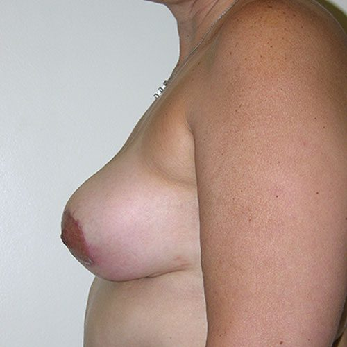 Breast Reduction 58 After Photo