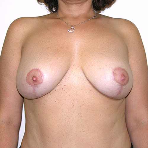 Breast Reduction 59 After Photo