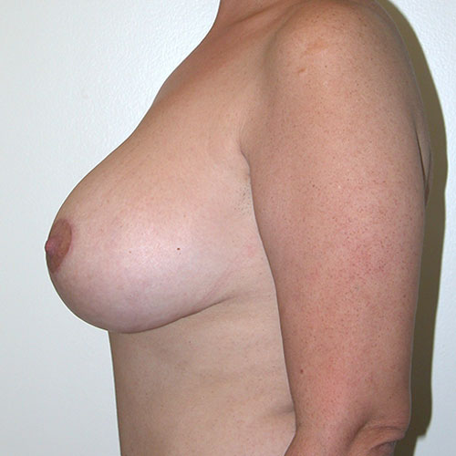 Breast Reduction 59 Before Photo
