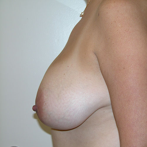 Breast Reduction 60 Before Photo