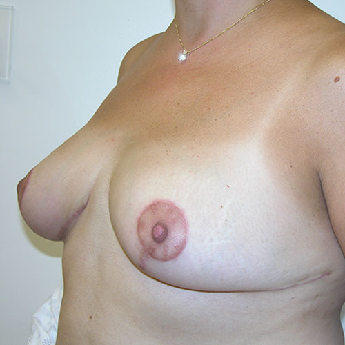 Breast Reduction 60 After Photo