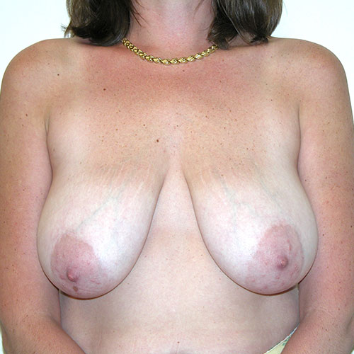 Breast Reduction 61 Before Photo