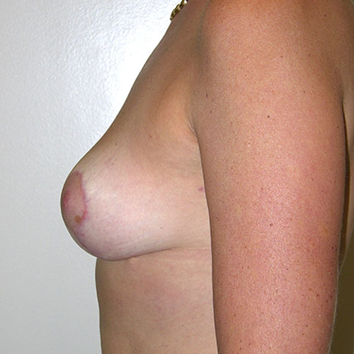 Breast Reduction 61 After Photo