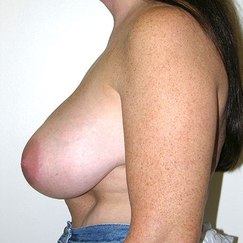 Breast Reduction 62 Before Photo