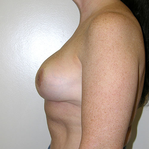 Breast Reduction 62 After Photo