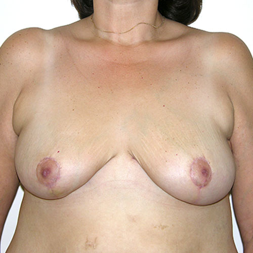 Breast Reduction 63 After Photo