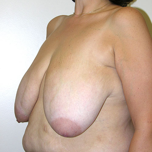 Breast Reduction 63 Before Photo
