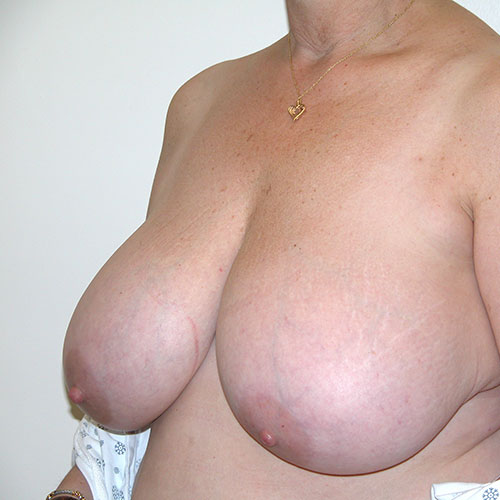 Breast Reduction 64 Before Photo