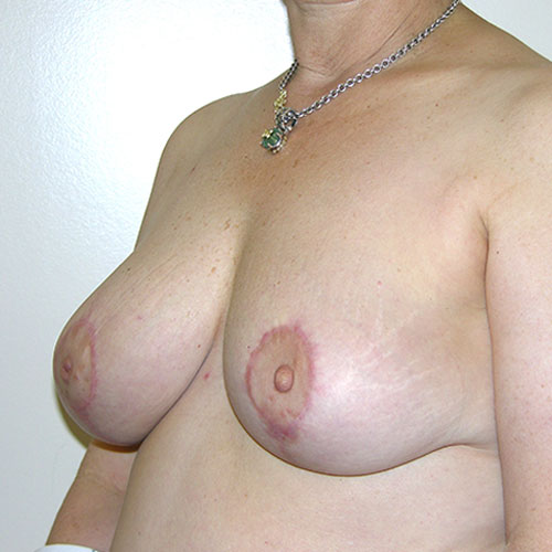 Breast Reduction 64 After Photo