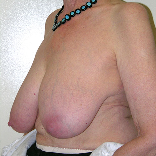 Breast Reduction 65 Before Photo