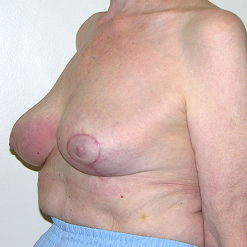 Breast Reduction 65 After Photo