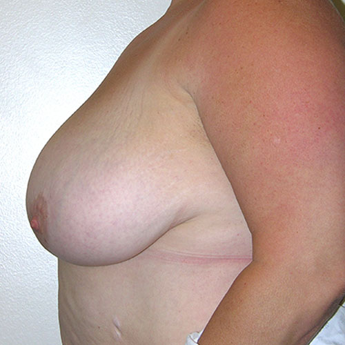 Breast Reduction 66 Before Photo
