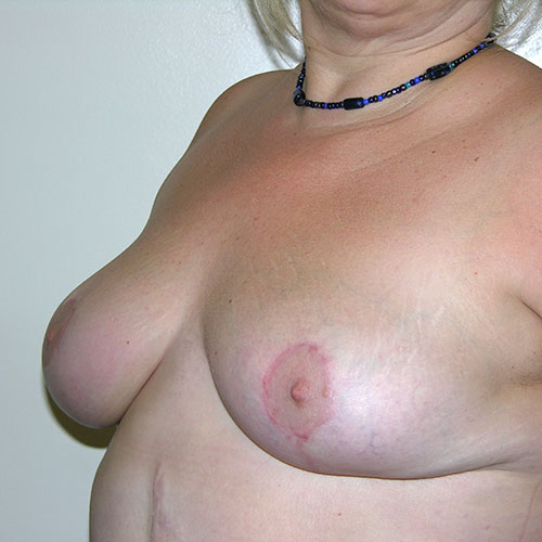 Breast Reduction 66 After Photo