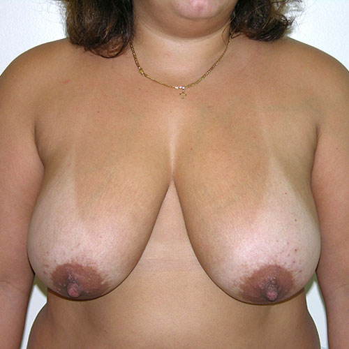 Breast Reduction 67 Before Photo