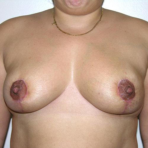 Breast Reduction 67 After Photo