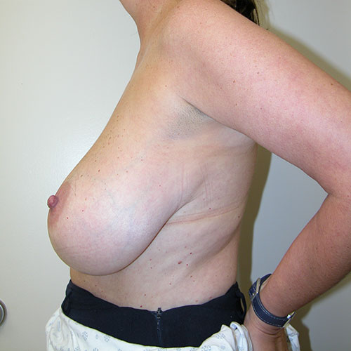 Breast Reduction 68 Before Photo