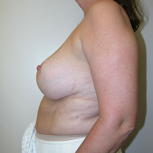 Breast Reduction 68 After Photo