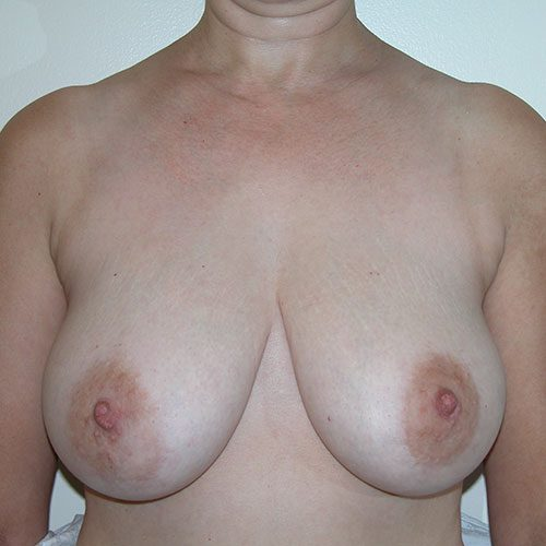 Breast Reduction 69 Before Photo