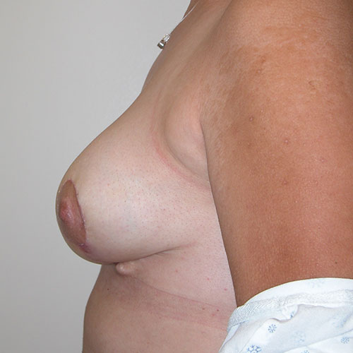 Breast Reduction 69 After Photo