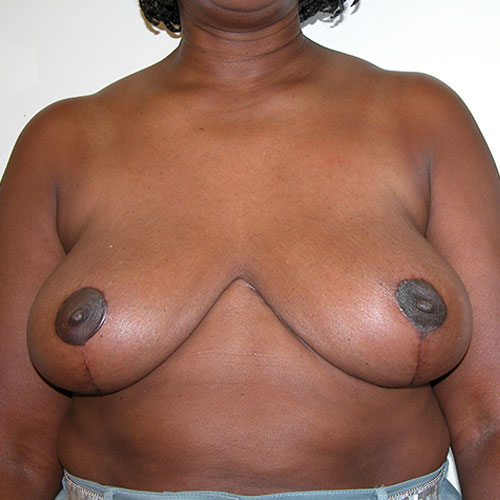 Breast Reduction 70 After Photo