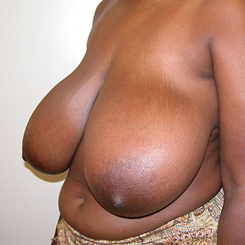 Breast Reduction 70 Before Photo