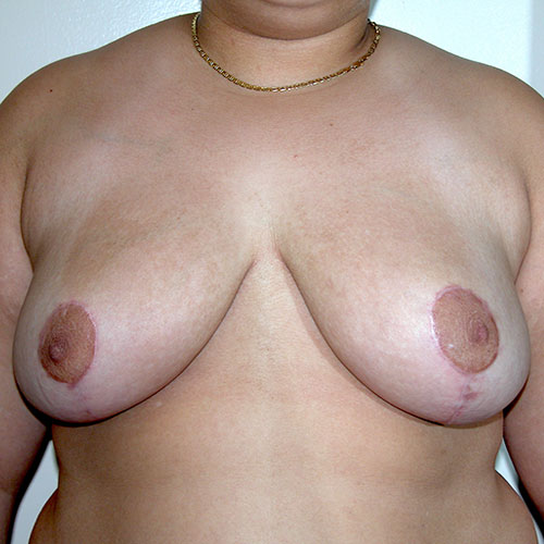 Breast Reduction 71 After Photo