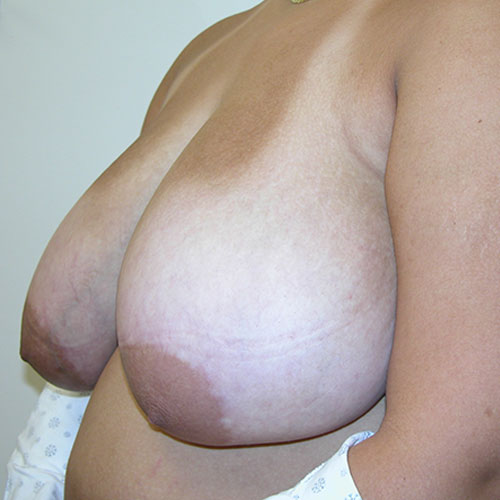 Breast Reduction 71 Before Photo