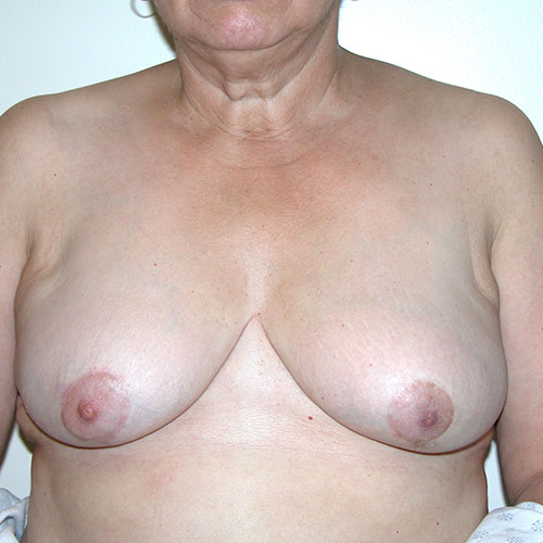 Breast Reduction 72 After Photo