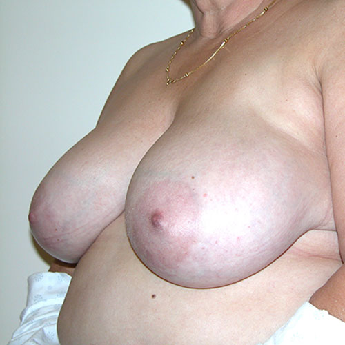 Breast Reduction 72 Before Photo