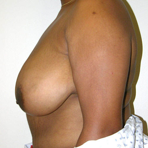 Breast Reduction 73 Before Photo