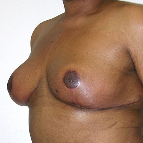 Breast Reduction 73 After Photo