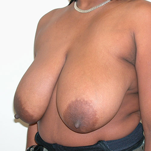 Breast Reduction 74 Before Photo