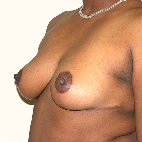Breast Reduction 74 After Photo
