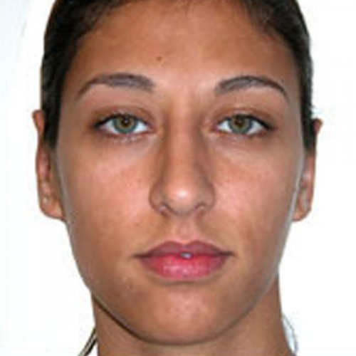 Otoplasty 1 After Photo
