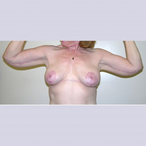 Armlift 11 After Photo
