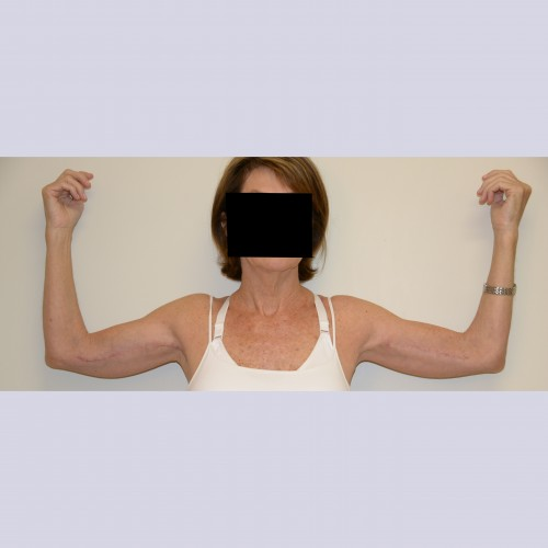 Armlift 3 After Photo