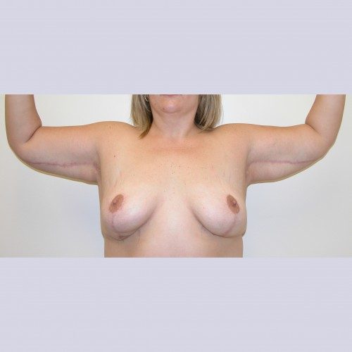 Armlift 7 After Photo