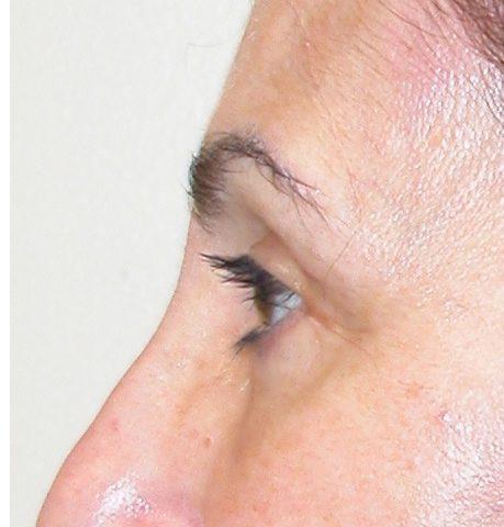 Blepharoplasty 11 After Photo