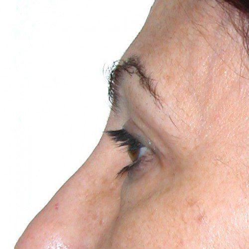 Blepharoplasty 11 Before Photo